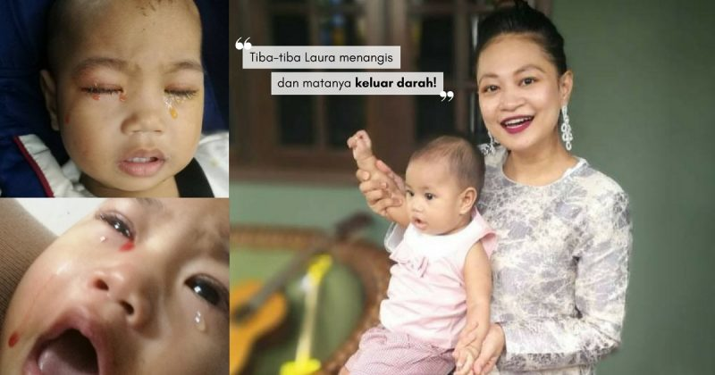 Tangisan Berdarah… Wanita Ini Kecam Ibu Bapa Yang Hantar Anak Sakit Mata Ke Taska, Tengoklah Akibatnya!