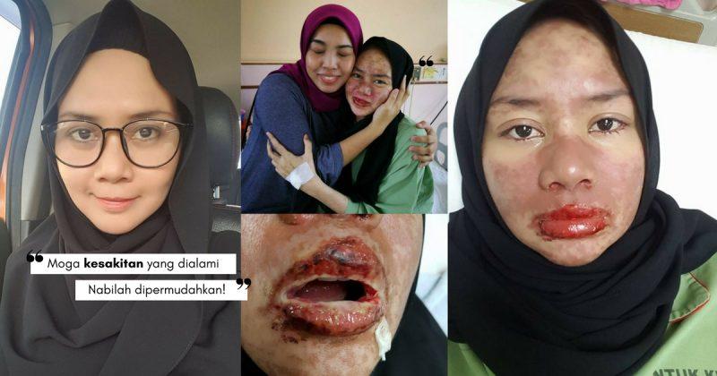 """""""Doktor Akan Siat & Bersihkan Kulit Mati Di Bibir Sampai Berdarah,"""" Akibat Alahan Ubat, Ibu Muda Ini Berdepan Mimpi Ngeri!"""