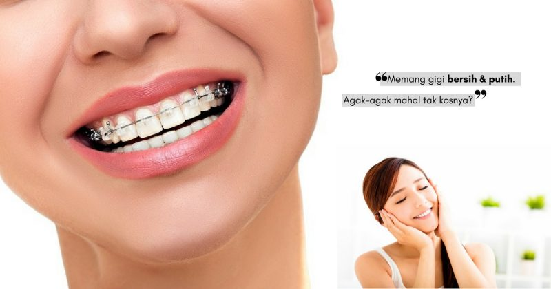 Trend Selebriti Sekarang Buat VENEER Gigi, Patutlah Gigi Mereka Nampak Putih Berseri!